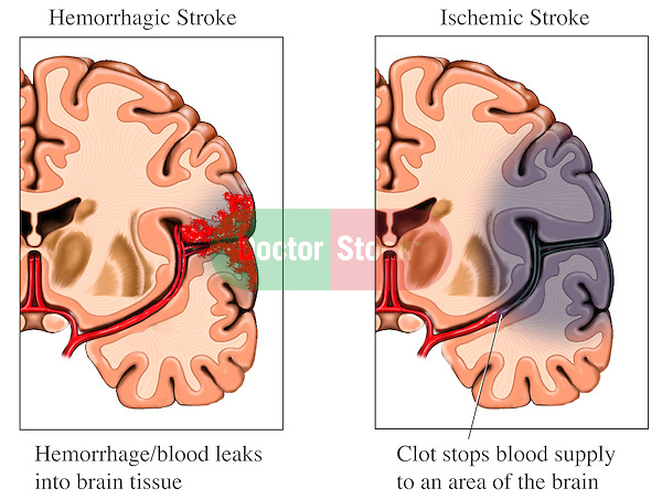 This labeled color stock illustration features two comparative views illustrating the different appearance between Hemorrhagic vs. Ischemic Stroke
