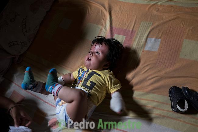 2015-03-04. UN ÁNGEL CON LAS ALAS PEGADAS. © Calamar2/Susana HIDALGO & Pedro ARMESTRE<br /> <br />  Ángel César Alonso, de 10 meses, nació por cesárea en Chiclayo (Perú) y los médicos le diagnosticaron síndrome de Apert, una enfermedad genética que afecta a la forma de la cabeza y que hace que el pequeño tenga los ojos abultados y padezca sindactilia (los dedos de las manos y de los pies pegados). El síndrome de Apert es una de las 7.000 enfermedades raras que existen en el mundo y su prevalencia oscila entre 1 y 6 casos por cada 100.000 nacimientos. La historia de este bebé es la historia de unos padres coraje, César Cruz y Edita Jiménez, que se desviven para que el pequeño pueda tener la mejor calidad de vida posible. César y Edita acudieron el pasado mes de marzo junto a su bebé al hospital San Juan de Dios, en Chiclayo, al reclamo de una campaña solidaria de intervenciones quirúrgicas organizadas por la Sociedad Española de Cirugía Plástica, Reparadora y Estética (Secpre) y la ONG Juan Ciudad. Los cirujanos españoles le operaron las manos para separar unos dedos de otros. La intervención duró aproximadamente una hora y media y el pequeño necesitó de curas posteriores.<br /> La operación fue el primer paso en la mejora de la salud de Ángel. Necesitará al menos otra más para separar los dedos de los pies. Sus padres son humildes y apenas tienen recursos.  César, el padre, trabaja levantando casas de adobe. Edita, la madre, vive para su hijo y le gustaría en un futuro retomar su profesión de enfermera. © Calamar2/Pedro ARMESTRE<br /> <br />  AN ANGEL WITH THE WINGS ATTACHED. © Calamar2/Susana HIDALGO & Pedro ARMESTRE<br /> <br /> Angel César Alonso was born in Chiclayo (Peru) and was diagnosed with Apert syndrome, a genetic disease that affects the shape of the head and makes him having eyes bulging and suffering syndactyly (the fingers and feet flat). The story of this baby is the story of parents courage: Edita César Jiménez Cruz, who are fighting everyday to giv