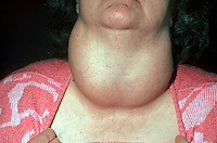 Massive goiter. A hypertrophic thyroid gland, usually evident as a pronounced swelling in the neck. This image may only be used to portray the subject in a positive manner..©shoutpictures.com..john@shoutpictures.com