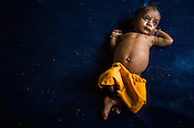 12 month old Subit Kailash, a malnourished boy is seen at the Nutrition Rehabilitation Centre (NRC) in Khaknar block of Burhanpur district in Madhya Pradesh, India. Photo: Sanjit Das/Panos for ACF
