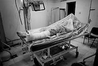 Rebel casualty at Al-Zawiya Hospital, Zawiya, Libya