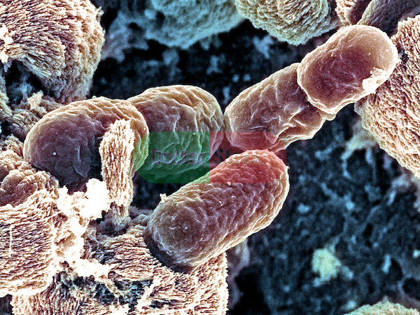 Bacteria, Salmonella oranienberg bacteria Causes salmonellosis, most commonly related to meats, vegetables, eggs, chocolate and un-Pasteurized milk A recent outbreak of salmonellosis in Canada was linked to S oranienberg in ice cream, 35,000x magnification