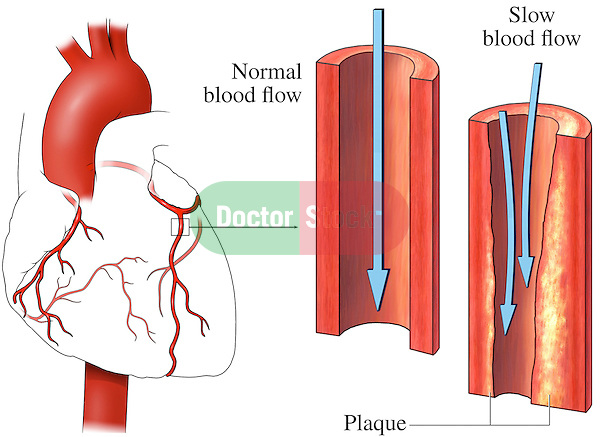 This medical exhibit pictures an anterior (front) view of the heart and coronary arteries. The second illustration displays an enlarged cut-away view of a normal left anterior descending coronary artery showing a normal, clear lumen.  The third graphic displays the same enlargement with plaque partially occluding the lumen of the vessel, reducing blood flow.