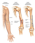 Fractured (Broken) Arm with Fixation Surgery. This medical-legal chart depicts a complex fracture and repair of the left midshaft humerus shown with three anterior (front) views. The first two graphics show the left humerus arm bone in comparison to the a humerus with a spiral oblique comminuted fracture. The final illustration shows the left humerus after it has been surgically reduced and fixated with a 10-hole plate, multiple screws and two tension bands.