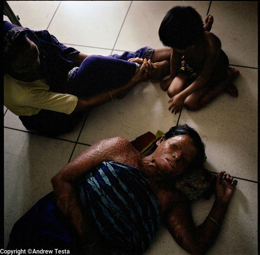 BANGLADESH. Dhaka. June 2005..Angura. 30 years old, lies with her son and mother on the floor of her ward in the hospital run by the Acid Survivors Foundation in Dhaka. Her husband and another man threw acid on her and then burnt her eyes with a blowtorch after she refused her husband permission to take another woman into their home..©Andrew Testa