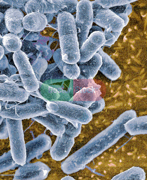 Bacteria, verotoxigenic E coli, E. coli causes 'Hamburger disease' E coli, E. coli, O157:H7 Food poisoning, enteritidis, intestinal disorders hemorrhagic colitis, hemolytic uremic syndrome, 50,000x magnification