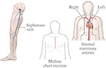 Heart Surgery - Graft and incision sites for coronary artery bypass procedure. This medical illustration shows the saphenous vein, midline chest incision and the internal mammary artery approach.