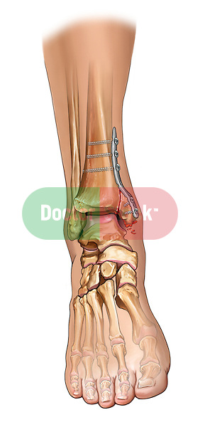 Post-operative Medial Maleollar Fracture Fixation; depicts the fixation of the fibular maleollar fracture including an iset of the fixation hardware  Also, the incision over the medial malleolus is depicted