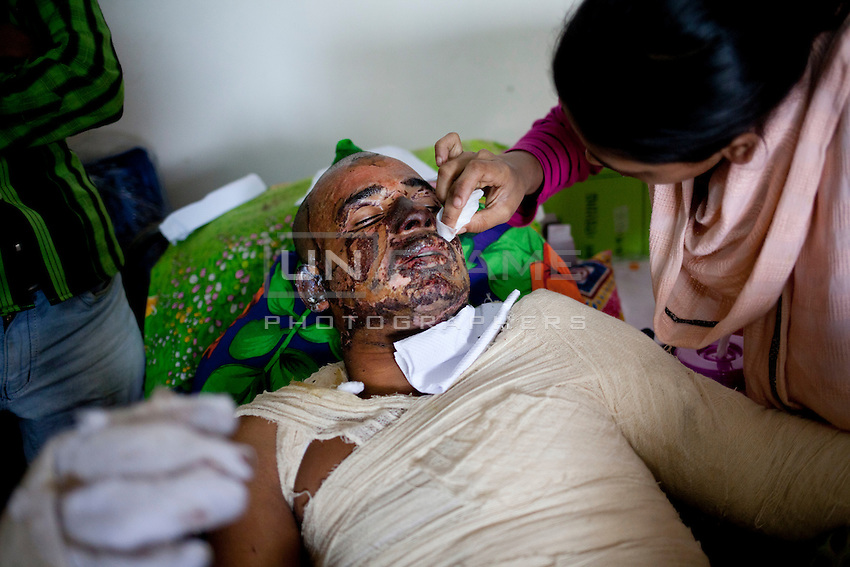 Md. Salim, 30, receives treatment at a medical college hospital after being injured in a recent bomb attack during the ongoing nationwide blockade called by the opposition Bangladesh Nationalist Party (BNP), in Dhaka, Bangladesh, Sunday, Jan. 18, 2015.