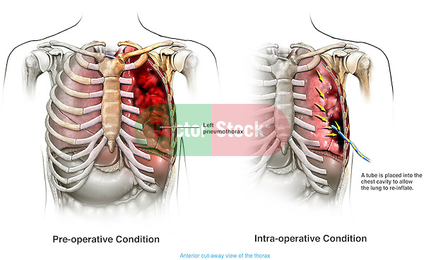 This medical exhibit illustrates the surgical treatment for pneumothorax in which a tube is place into the chest to allow the lungs to reinflate.