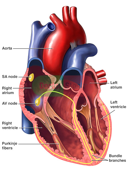Accurately depicts the anatomy of the heart with elements of the cardiac conduction system. Labels for aorta, right and left atrium, right and left ventricles, SA node, AV node, Purkinje fibers, and bundle branches.
