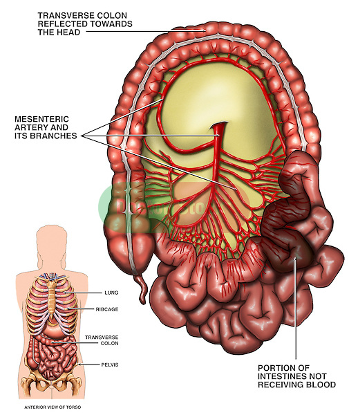 Anatomy of Superior Mesenteric Artery with Lack of Blood Supply to the Small Intestine.
