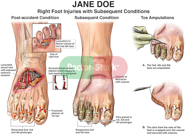 Amputated Toe Surgery. This medical exhibits features the post-accident condition involving the right foot and toes. It includes the surgical steps plus the subsquent condition leading to amputation of 5th, 4th, and 3rd phalanges.