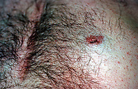 Knife wound of abdomen. This image may only be used to portray the subject in a positive manner..©shoutpictures.com..john@shoutpictures.com