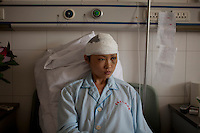 25 year old Liu Huiling from Urumqi recovers in the Number 2 Hospital in Urumqi. She is a kindergarden teacher who was pulled off a bus and beaten by a mob of Uighurs on the 5th July. Ethnic violence between the Uighur and Han Chinese erupted in the city a few days earlier..