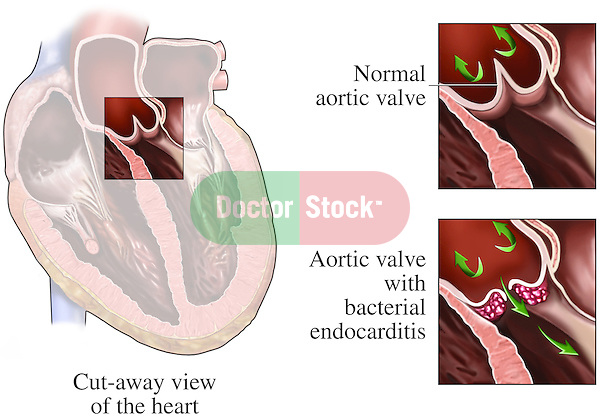 This medical exhibit clearly portrays an infection of the aortic valve with three images. The first image displays the entire heart in a cut view allowing visualization of the atria and ventricles; a small box highlight the aortic valve. The second image is an enlarged view of the aortic valve when it is normal and healthy. The third image shows the same valve with bacterial growth on the ventricular side of its cusps.