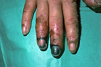 Ischaemic fingers due to meningitis. Ischemia - a decreased supply of oxygenated blood to a body organ or part. This image may only be used to portray the subject in a positive manner..©shoutpictures.com..john@shoutpictures.com