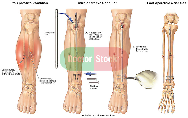 Post-accident Comminuted Lower Leg Fractures with Surgical Fixation