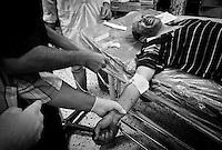 Civilian casualty at Al-Zawiya Hospital, Zawiya, Libya