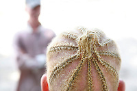 The blonde cornrows of Hatisha Kambi. She lives with her three albino siblings in a small rented room. Discrimination against albinos is a serious problem throughout sub-Saharan Africa, but recently in Tanzania albinos have been killed and mutilated, victims of a growing criminal trade in albino body parts fuelled by superstition and greed. Limbs, skin, hair, genitals and blood are believed by witch doctors to bring good luck, and are sold to clients for large sums of money, carrying with them the promise of instant wealth.