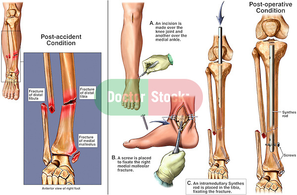 Fractured (Broken) Ankle with Surgical Fixation. This surgical exhibit reveals the following images:..1. Orientation and pre-operative view of the right lower leg revealing fractures to the distal tibia and fibula. 2. Incision into the leg and ankle, 3. Placement of screws and an intramedullary rod into the tibia. 4. Final post-operative view of the fracture hardware in place.