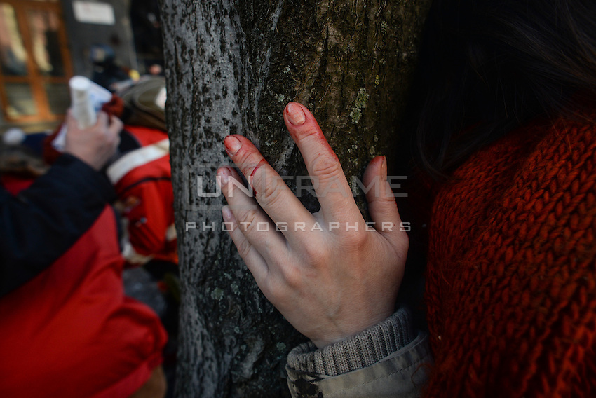 The hand of a young woman stained with blood in Maidan square.  Kiev, Ukraine