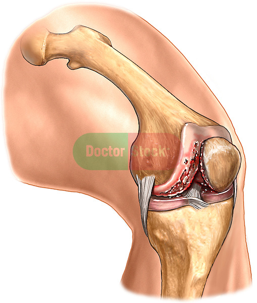 Accurately depicts  chondromalacia, or arthritic degeneration of the knee joint cartilage, on the femur. Visible are the medial femoral condyle cartilage with extensive chondromalacia tears, as well as a portion of the inside of the patella showing similar arthritic changes.