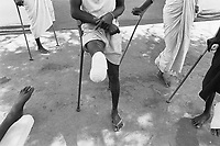 Kenya. Rift Valley province. Lokichogio. International Commitee for the Red Cross.  (ICRC - CICR). Lopiding hospital for South Sudanese patients. Dinka tribe. Polyprophylene protheses. Amputations' causes: 30% mines, 30 % bullets wounds, 30 % bombs from planes, 10% animals, crocodiles, snakes,...  © 1998 Didier Ruef