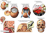 Brain Surgery - Craniotomy Procedure to Remove a Hematoma. This medical illustration series shows severe fractures to the skull, resulting bleeding with hematoma, and the surgical steps involved to repair them. Craniotomy, optic nerve decompression, and ethmoid sinus wall repair are featured.