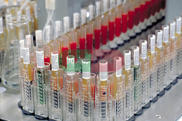 test tubes of blood samples on analysis machine