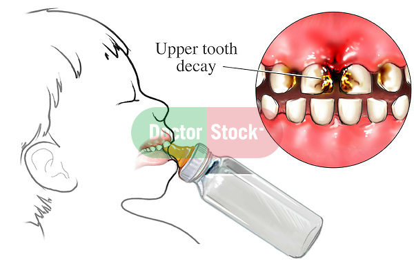 This medical exhibit illustrates the upper tooth decay in an infant as a result of using a bottle: Bottle Mouth.