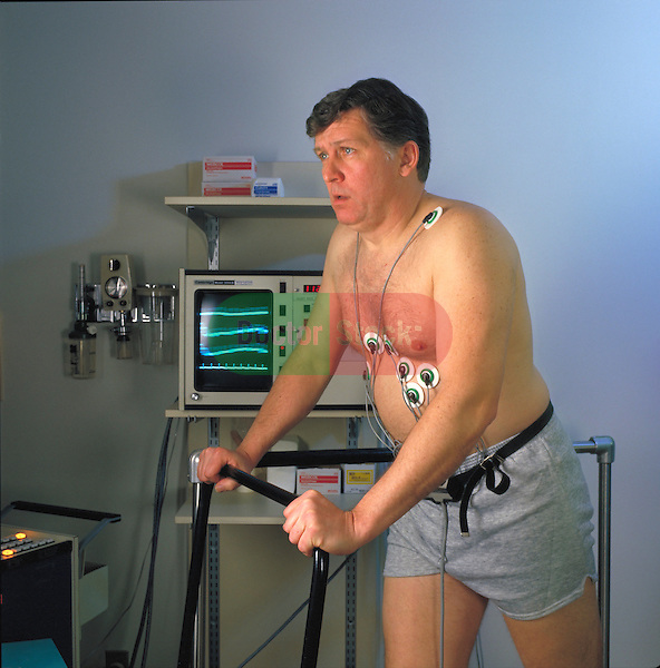 man on treadmill taking heart stress test