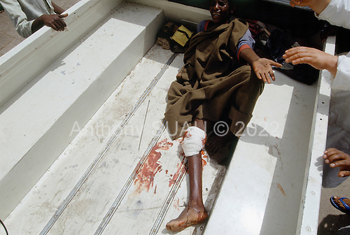 Addis Ababa, Ethiopia<br /> May 29, 1991<br /> <br /> A wounded demonstrator arrives at the Red Cross/Soviet Hospital after being shot in the streets for opposing the new government.<br /> <br /> In late May 1991 the long civil war in Ethiopia came to a climax when the alliance of four rebel groups, the Ethiopian People's Revolutionary Democratic Front (EPRDF), toppled the authoritarian government of Mengistu Haile-Mariam and took control of Addis Ababa and the nation. The governing regime declared a cease-fire and fled. <br /> <br /> In July 1991 the 24 different groups met in the capital and established a multi-party provisional government headed by Meles Zenawi, the Tigray Rebel Leader, to lead the country to its first free elections within two years.