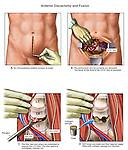 Back Surgery - L4-5 Lumbar Spinal Fusion.