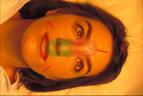 female patient with acupuncture needles in face