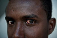 Refugees and migrants queue for a free primary care clinic run by Medicins du Monde in the Omonia district of Athens 12-6-12 A somali refugee waits to have his infected eye examined.
