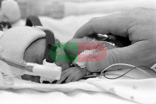 Close -up of doctor's hand touching tiny, premature baby on oxygen in incubator; baby girl was born 15 weeks premature and weighs 1 pound, 4 ounces