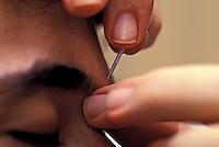Close-up of an acupuncturist inserting a needle into a man's forehead.