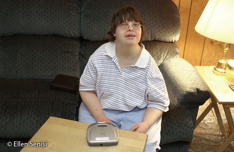 MR / Little Falls, NY.Woman (35, Down Syndrome). She lives with her parents (aged 80) at home, though plans are being made for her to move to an ARC (Association for Retarded Citizens) home. She has various medical conditions that are not unusual for persons with Down Syndrome. They include:            . - being legally blind:  detached retinas in both eyes, eye surgery, now has no vision in one eye, and a clouded cornea and rapidly deteriorating vision in the other     . - scoliosis: she has had surgery and has a steel rod in her back, but spine is still not straight (is at 60 degrees). - because of a small esophagus, which caused frequent choking on food, she had an endoscopy to stretch her esophagus.But no problems with her ears -she loves her music!.Bab3.©Ellen B. Senisi