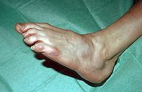 Forefoot ( mid-tarsal ) dislocation. This image may only be used to portray the subject in a positive manner..©shoutpictures.com..john@shoutpictures.com