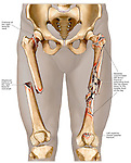 This custom medical exhibit reveals a single view of the lower extremties with the dramatic appearance of Severe Bilateral Femoral Fractures (fractured, broken legs).