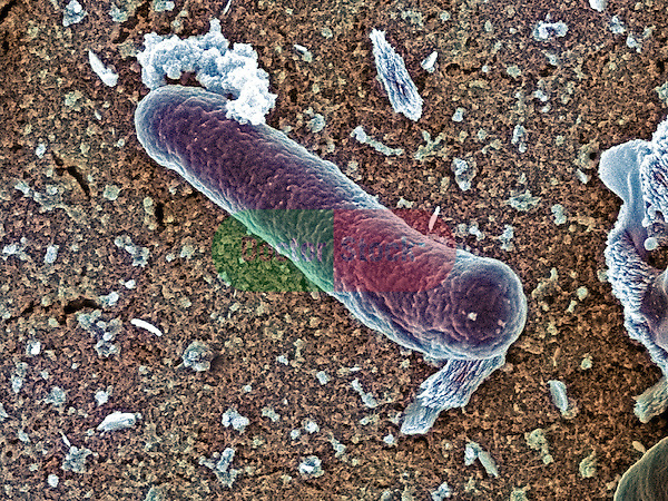Bacteria, Salmonella oranienberg bacteria causes salmonellosis, most commonly related to meats, vegetables, eggs, chocolate and un-Pasteurized milk A recent outbreak of salmonellosis in Canada was linked to S oranienberg in ice cream, 30,000x magnification