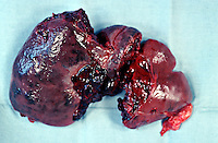 Pathology specimen which has been surgically removed. Ruptured spleen. This image may only be used to portray the subject in a positive manner..©shoutpictures.com..john@shoutpictures.com