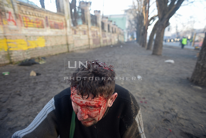 A Protester has been injured and is heavily bleeding from his head and face.  Kiev, Ukraine