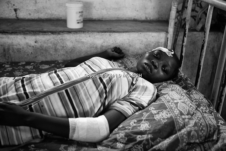Bomb victims are seen in a hospital in an undisclosed location in South Kordofan, 4 July 2011. On the 5 June, after almost 10 years of relative peace, Sudan's President Omar Al-Bashir sent his army, the Sudan Armed Forces (SAF), to attack on the people of the Nuba Mountains in South Kordofan, using MiG fighters to shoot at vehicles, and Antonov cargo planes, converted to use as heavy bombers. (John D McHugh)