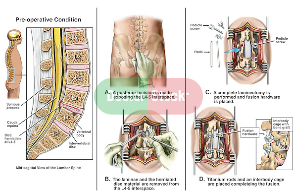 Back Surgery - L4-5 Disc Herniation with Lumbar Discectomy (Diskectomy) and Spinal Fusion.