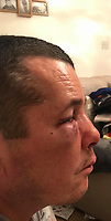 "Pictured: Johnathan Broom after the attack<br /> Re: A man has been left needing surgery after being attacked by three men in what is believed to have been a case of mistaken identity.<br /> 42 year old Johnathan Broom, from the Clase area of Swansea, was ""sliced"" on his back when he was attacked by three men while walking home after visiting a friend's house on Sunday night.<br /> During the assault, Mr Broom heard one of the men saying ""we've got the wrong man"", with another shouting ""sorry"" before they got back in their car and left the scene.<br /> Danielle Ross, his 28 year old partner said: ""He's got a broken nose, a fractured eye socket, swollen eyes, bruising and marks on his back"".<br /> Mr Broom will now need an an operation for his nose to straighten it."