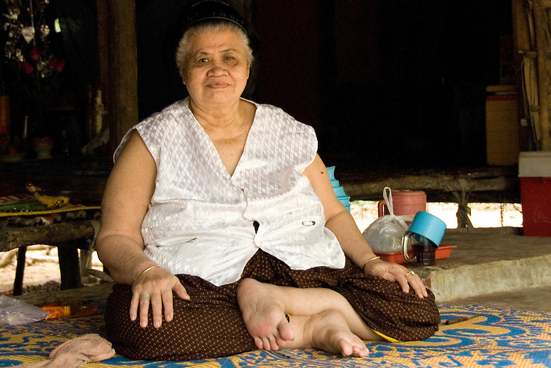 A heavyset woman sitting at home. Although not common in Cambodia, obesity is growing with changes in diet and activity levels.