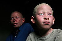 13 year old Ali Saidi sits with his father, 39 year old Saidi Tamim. They live with 13 other people in a 3-bedroom house. Ali Saidi's father has now developed skin cancer of the nose and the back. He's afraid of radiation treatment because it didn't help his wife and he saw her die after suffering for many months. Instead he's taking Afdex, an anti-cancer drug, hoping that it will be enough to eliminate the cancer cells. Discrimination against albinos is a serious problem throughout sub-Saharan Africa, but recently in Tanzania albinos have been killed and mutilated, victims of a growing criminal trade in albino body parts fuelled by superstition and greed. Limbs, skin, hair, genitals and blood are believed by witch doctors to bring good luck, and are sold to clients for large sums of money, carrying with them the promise of instant wealth.