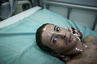 July 03, 2015 - Sana'a, Yemen: Oussan Massak, a 15 years-old student, lays on a bed in the Junhuria Hospital as he is treaten from his wounds after a bomb was dropped by a fighter jet form the Saudi-led coalition in Hajjar province last June 30th. (Photo/Narciso Contreras)